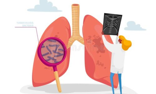 pulmonology-specialist-professional-doctor-character-holding-ray-image-lungs-learning-patient-fluorography-tuberculosis-187991384